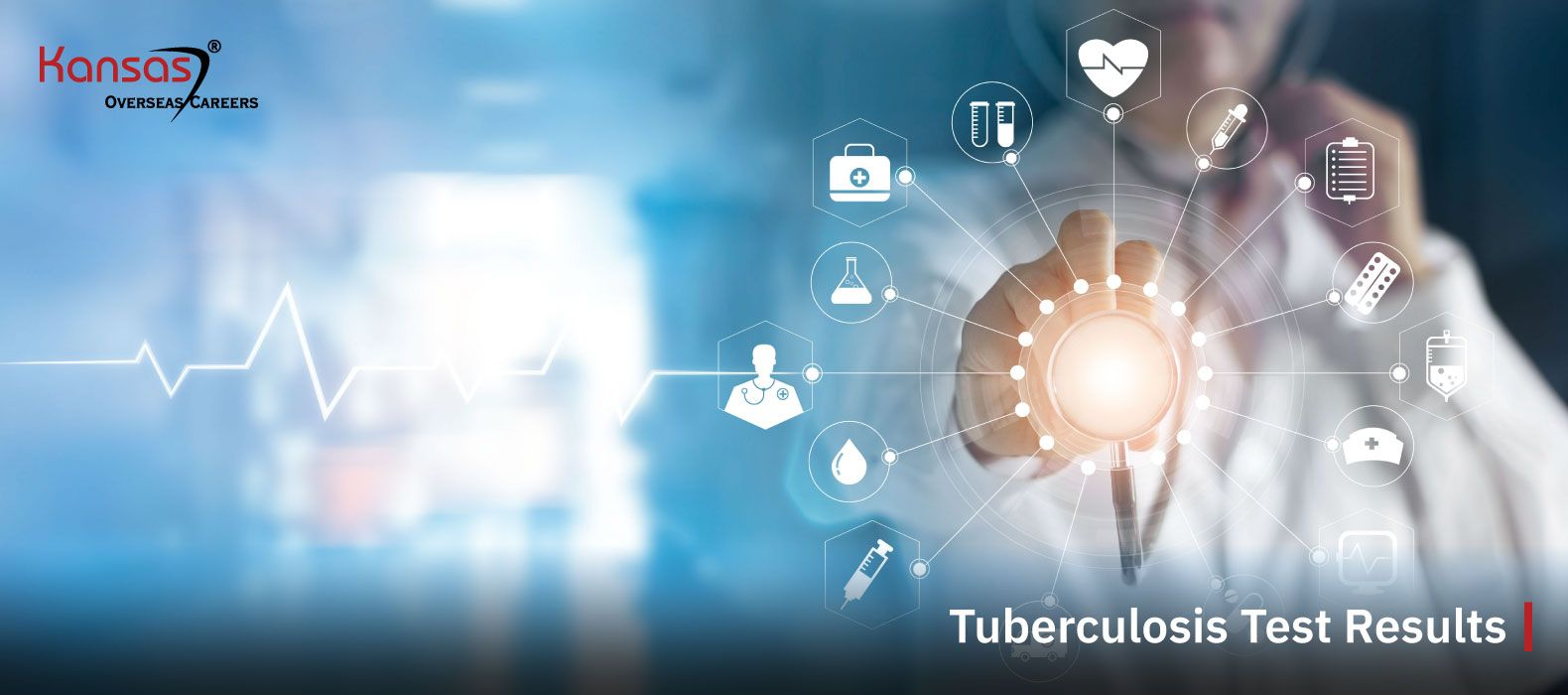 Tuberculosis-Test-Results